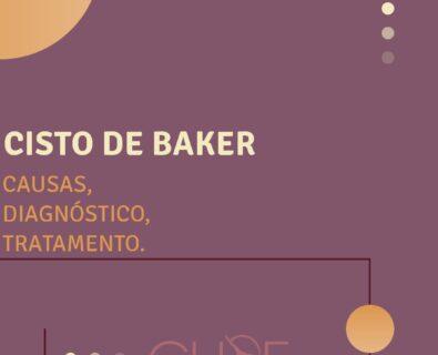 Cisto de Baker: Causas, Sintomas e Tratamento